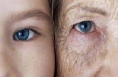 Что старит нашу кожу? Ответим!
